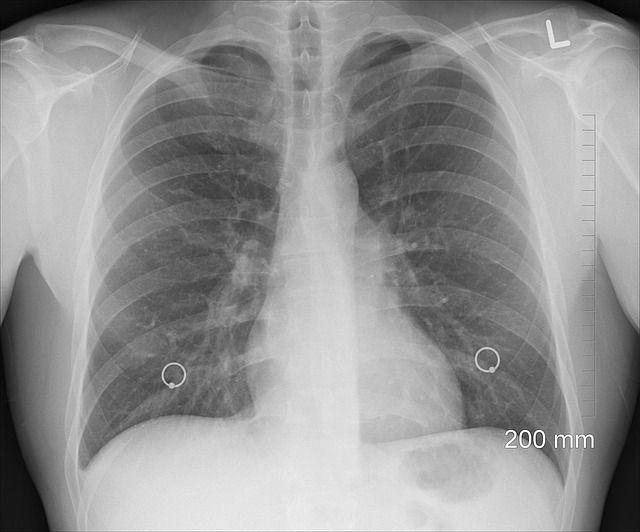 В Октябрьском районе Приморья объявили войну туберкулёзу